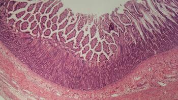 07AUG20 ibd colitis intestine histology microscopy-1