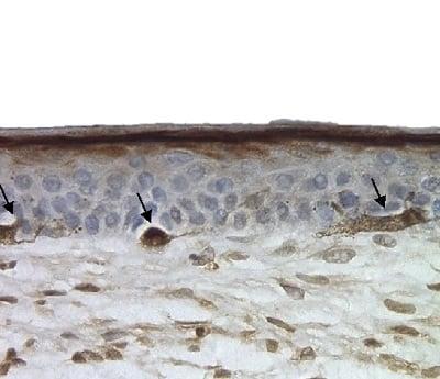 A Melnocytes s100