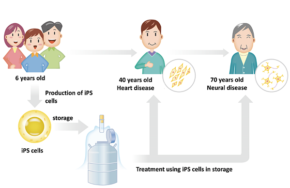 A diagram showing how personalized iPSCs can be created from a customer for use in later life-1