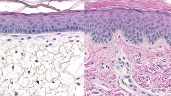 Alvetex skin model vs human skin