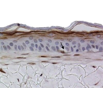 B Melnocytes s100