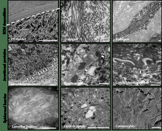 ECM of alvetex skin equivalent