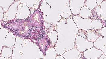 EVG Precision Cut Lung