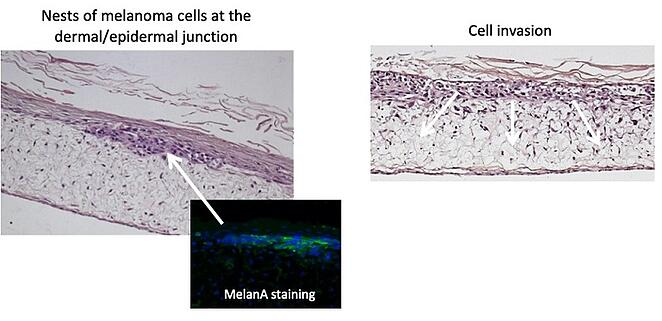Inclusion of Mucus Goblet cells.png