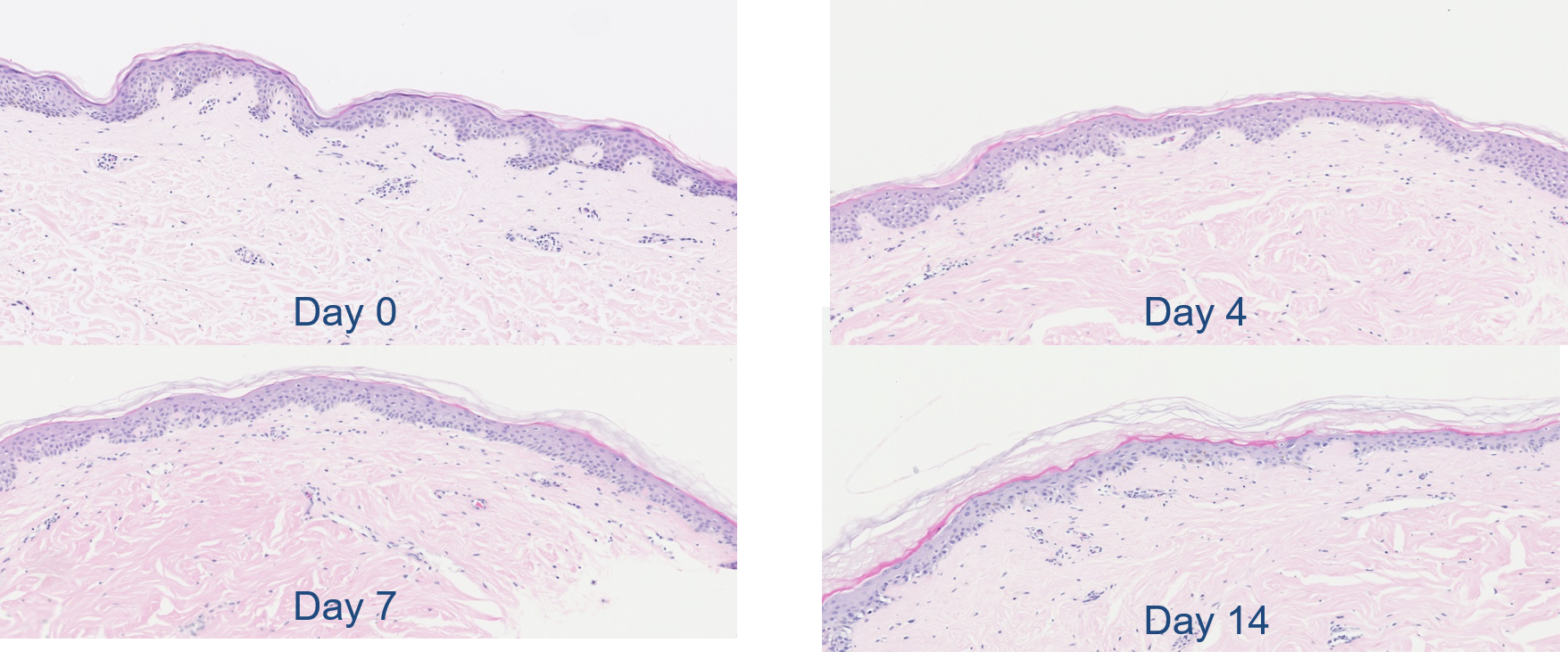 Normal Skin Histopathology Maintained for up to One Week in Culture