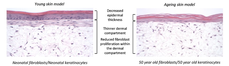 Novel ageing skin model developed using keratinocytes and fibroblasts from the same 50-year-old female donor