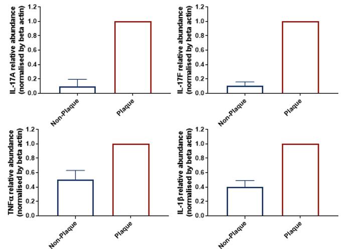 Psoriasis Patient Biopsies Characterisation by qRT-PCR