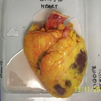Residual surgical tissue