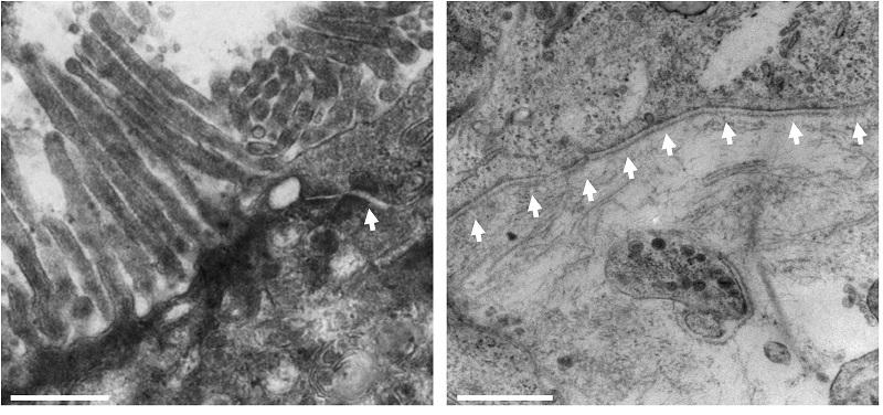 TEM analysis of alvetex model of human intestine