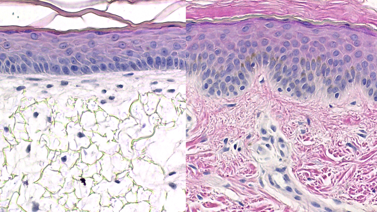 Bioengineering Epithelial Tissues In Vitro